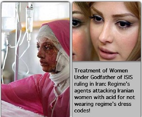 Victim of  acid attacks on girls and women in Iran for disobeying regime's dress code.